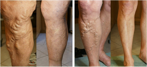 Хөлийн Венийн судасны өргөсөл ба Лазер Мэс засал